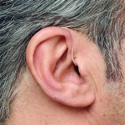 venda-de-aparelhos-auditivos-e-acessorios